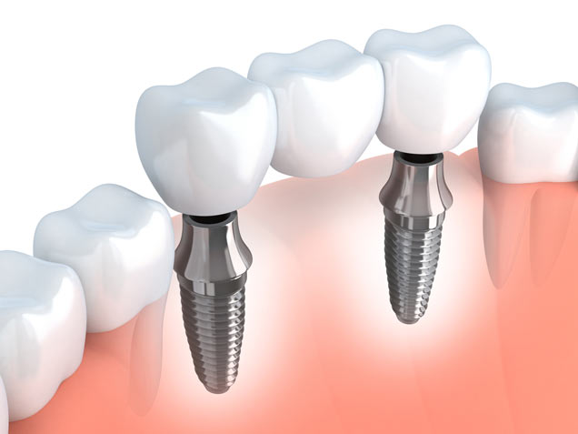 Dental implants and fixed bridge crowns in Calgary