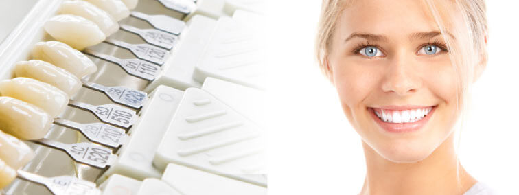 dental samples and woman smiling with beautiful teeth