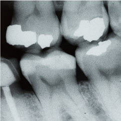 x-ray of teeth during professional teeth cleaning and exam